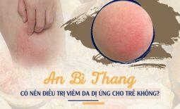 Có nên điều trị viêm da dị ứng cho trẻ bằng An Bì Thang?