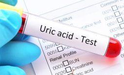 Acid uric được hình thành do phân hủy purin