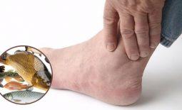 Bệnh gout ăn được cá gì