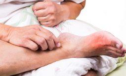 Các bài thuốc Đông y giúp giảm triệu chứng của bệnh