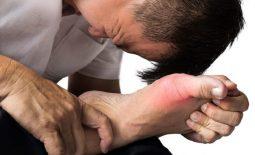 biến chứng của gout