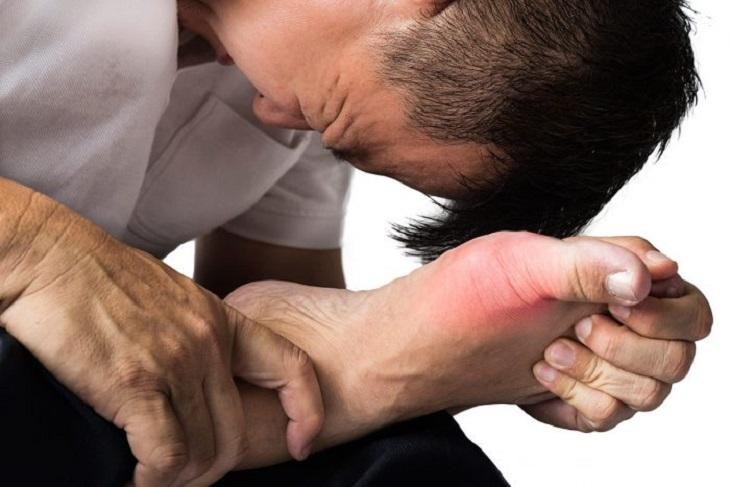 Biến chứng của gout ảnh hưởng trực tiếp đến cuộc sống hằng ngày