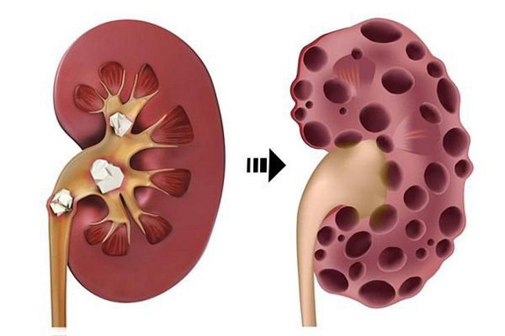 Gout có thể gây ra biến chứng tại thận, điển hình là sỏi thận, suy thận