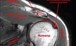Chụp cộng hưởng từ khớp vai (MRI) và những ý nghĩa lâm sàng