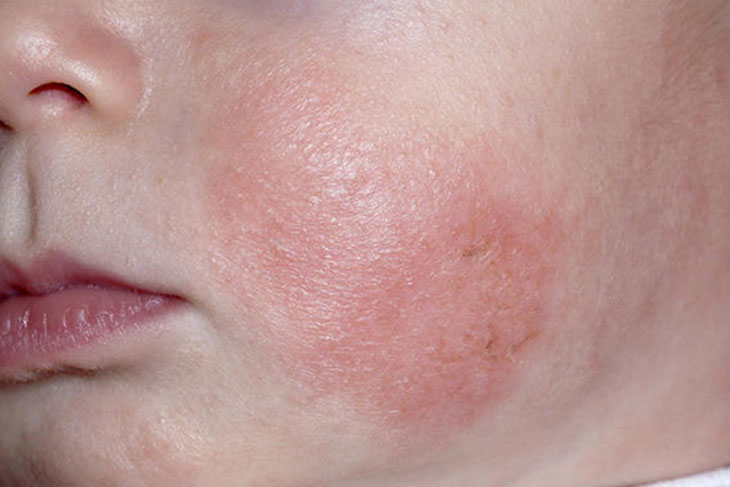 Bệnh da khô ở trẻ em thường xuất hiện những mảng da bong tróc, sần sùi, và không gây ra dấu hiệu ngứa hoặc đỏ đối với là bệnh khô da thông thường