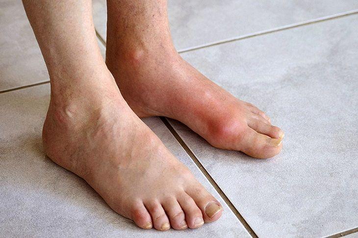Hình ảnh bệnh nhân bị gout thường thấy hiện nay