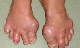 Hình ảnh bệnh nhân bị Gout