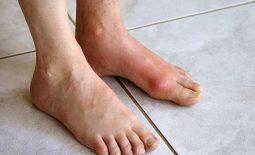 Gout cấp tính gây ra các cơn đau ở mức độ vừa phải