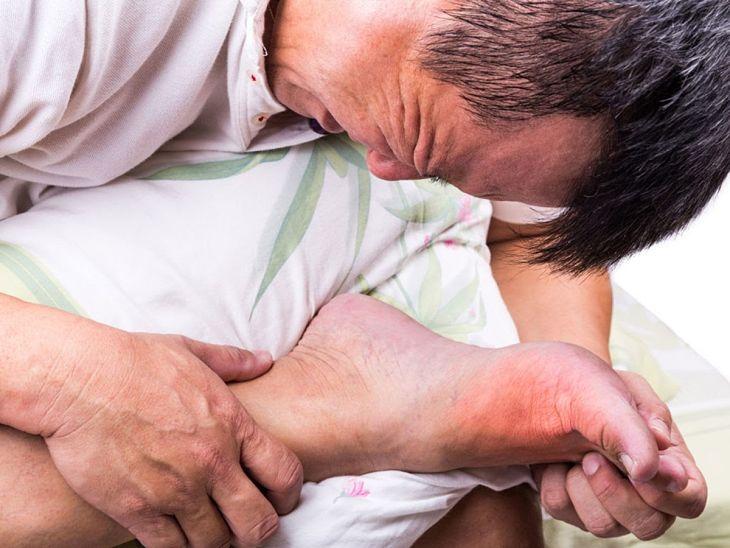 Triệu chứng điển hình của bệnh gout là các khớp xương đau nhức, sưng đỏ