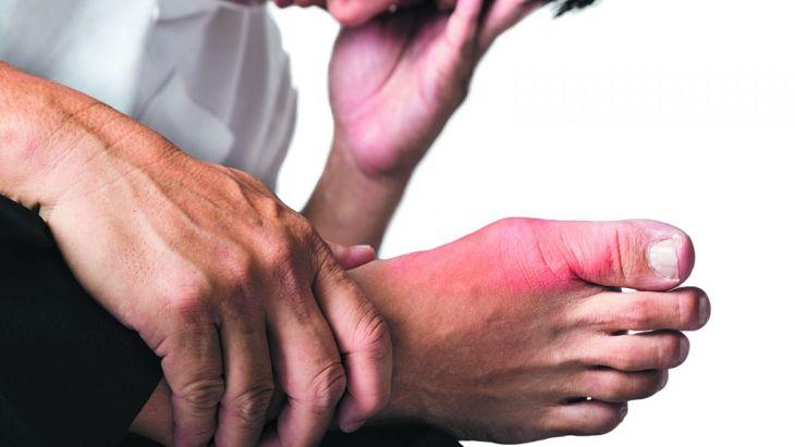Triệu chứng điển hình của bệnh là các khớp sưng tấy, viêm đỏ