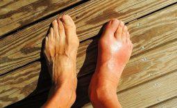 Gout mãn tính là giai đoạn tiến triển nặng của gout cấp tính