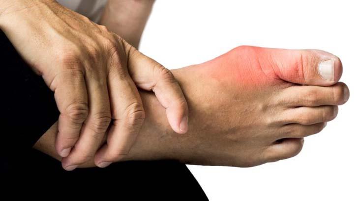 Hà Thống Phong - Sản Phẩm Điều Trị Dứt Điểm Bệnh Gout