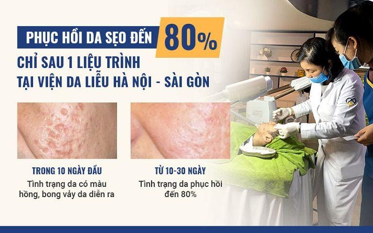 Bóc tách trị sẹo mang lại hiệu quả cao, không gây tác dụng phụ