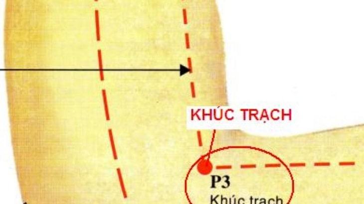 Huyệt khúc trạch có liên quan đến phần gân cơ khuỷu tay