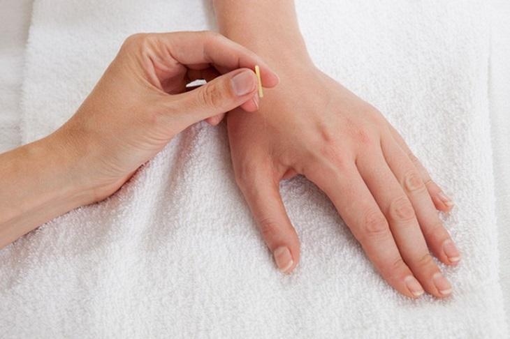Thầy thuốc Đông y thường áp dụng biện pháp bấm huyệt và châm cứu vào thái uyên trong điều trị