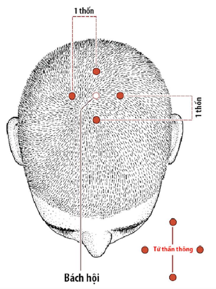 Huyệt Tứ Thần Thông bao gồm 4 huyệt đạo nằm trên đỉnh đầu