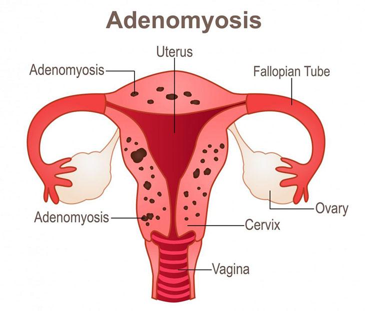 Hình ảnh mô phỏng nội mạc tử cung đi lạc sang các cơ quan vùng chậu