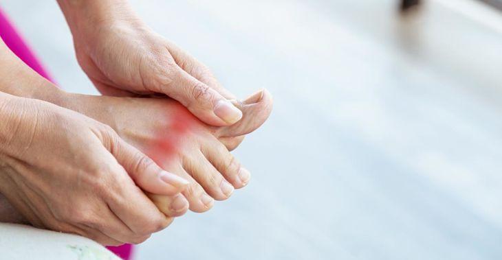 Trước khi điều trị, bác sĩ sẽ chẩn đoán bệnh gout