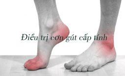 Phác đồ điều trị gout cấp phải dựa trên chuẩn của Bộ Y tế