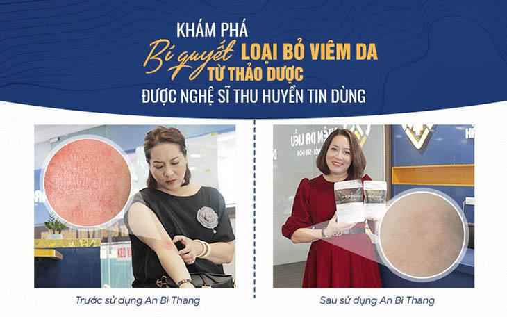 Hình ảnh làn da của nghệ sĩ Thu Huyền trước và sau điều trị