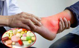 Top 6 loại thuốc trị gout hiệu quả được chuyên gia khuyên dùng