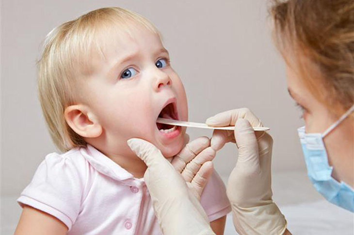 Chẩn đoán cận lâm sàng kết luận chính xác về bệnh viêm mũi xoang ở trẻ em