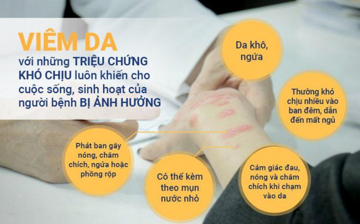 Bác sĩ Nhuần chia sẻ về những triệu chứng điển hình của bệnh viêm da