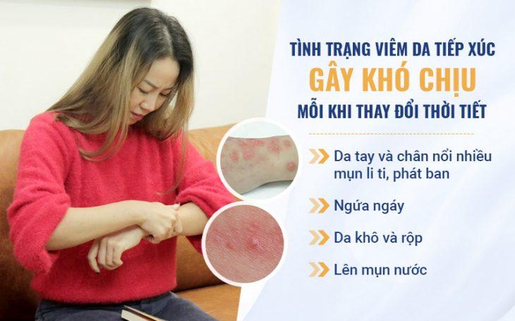 Diễn viên Vân Anh từng mắc viêm da tiếp xúc mãn tính kéo dài hơn 2 thập kỷ