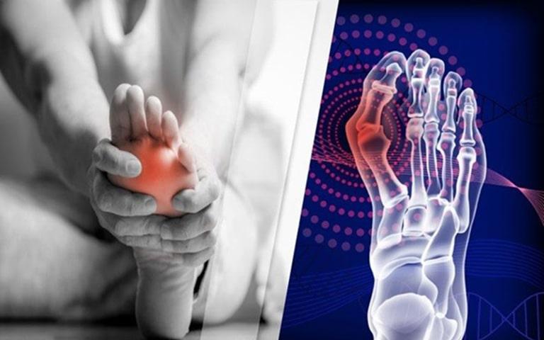 Gout gây viêm sưng ảnh hưởng đến khả năng đi lại, tăng nguy cơ mắc bệnh tim mạch, đột quỵ