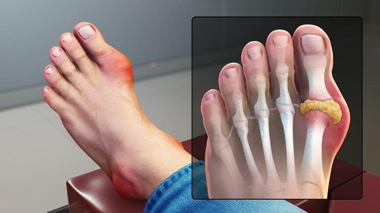Gout gây sưng đau, biến dạng khớp