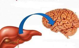 Bệnh lý não gan là gì, chẩn đoán và điều trị bệnh não gan