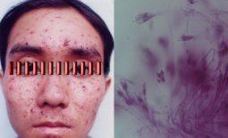 Bệnh nấm Penicillium marneffei là gì? Chẩn đoán và hướng điều trị nội khoa