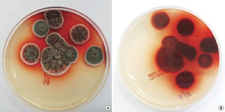 Các biện pháp chẩn đoán bệnh nấm Penicillium marneffei