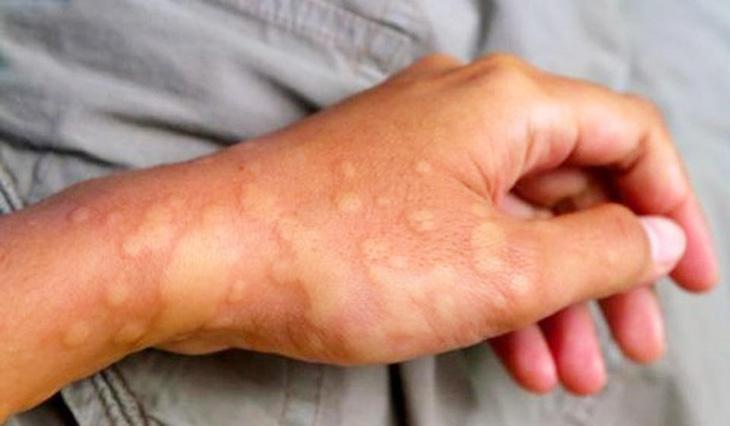 Bệnh nhân có thể xuất hiện mề đay sau khi tiêm thuốc cản quang