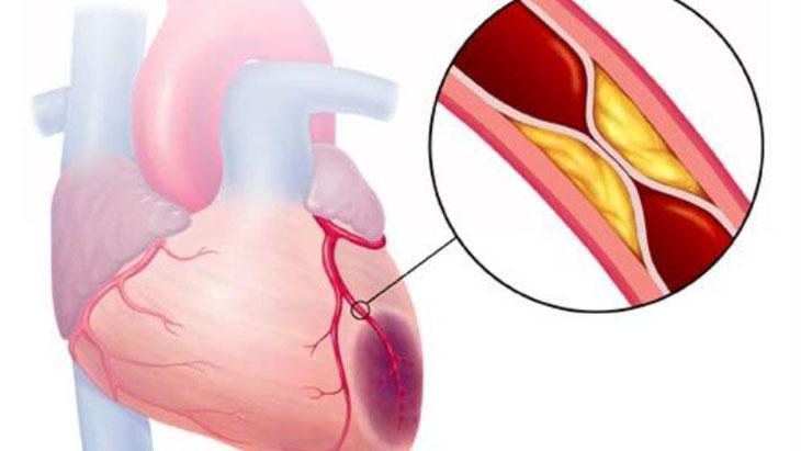 Chụp động mạch chủ được thực hiện khi thông tim trái