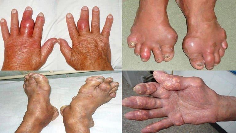 Gout gây nhiều biến chứng nguy hiểm