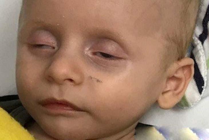 Dấu mắt trũng cũng là một trong những triệu chứng điển hình của bệnh