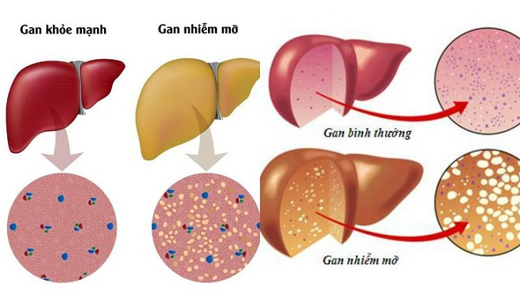 Có rất nhiều người có nguy cơ bị mắc bệnh gan nhiễm mỡ