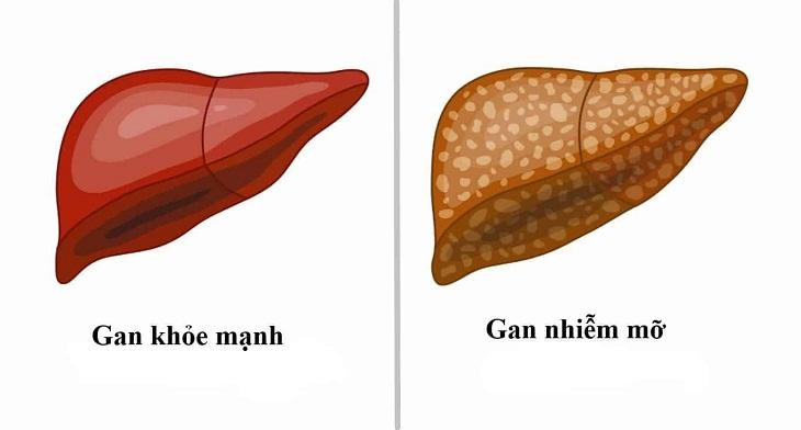Gan nhiễm mỡ là tình trạng mỡ bị tích tụ quá nhiều trong gan