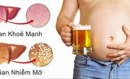Gan nhiễm mỡ là gì, chẩn đoán và điều trị gan nhiễm mỡ