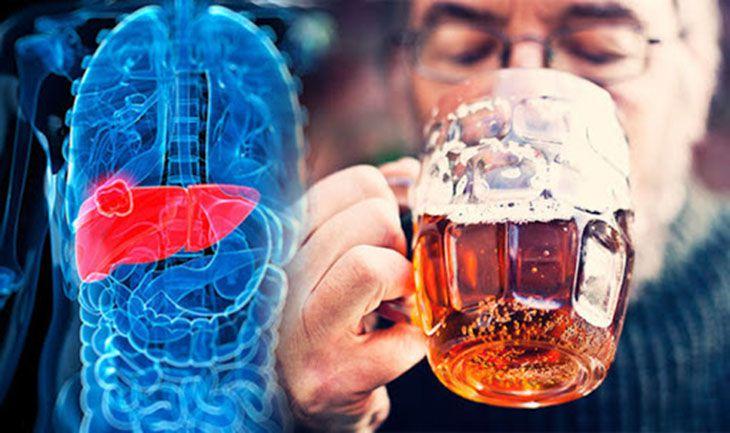 Sử dụng bia rượu gây tổn thương mãn tính cho gan và dẫn đến hội chứng HRS