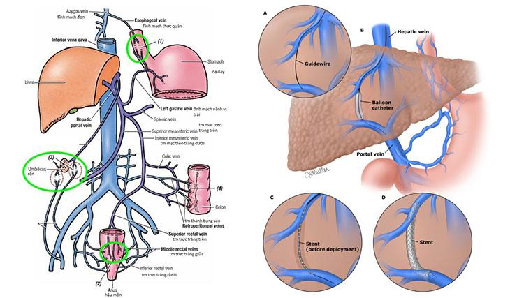 Cầu nối bên – bên hệ thống tĩnh mạch cửa với tĩnh mạch chủ