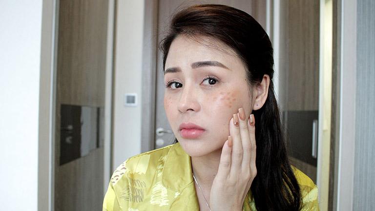 Diễn viên Lương Thu Trang từng bị nám, tàn nhang nặng sau sinh