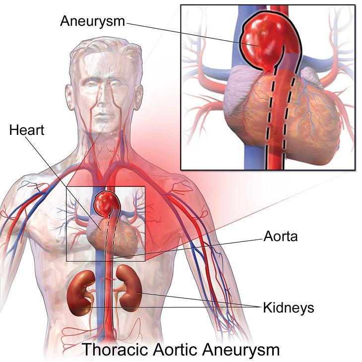 Động mạch chủ là mạch máu chính đưa máu từ tim đi nuôi các cơ quan khác trong cơ thể