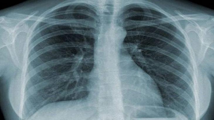 Chụp X-quang ngực để chấn đoán và phát hiện bệnh