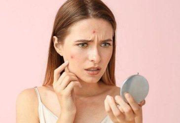 Sự thay đổi của vẻ bề ngoài cảnh báo việc bạn đang trong tình trạng rối loạn nội tiết