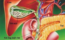Chẩn đoán và phác đồ điều trị sỏi ống mật chủ [Update mới nhất]