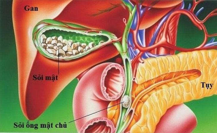 Hình ảnh mô phỏng sỏi ống mật chủ bệnh học