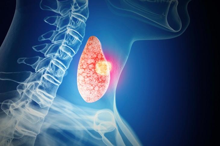Những chẩn đoán lâm sàng giúp các sĩ chẩn đoán chính xác bệnh viêm tuyến giáp bán cấp
