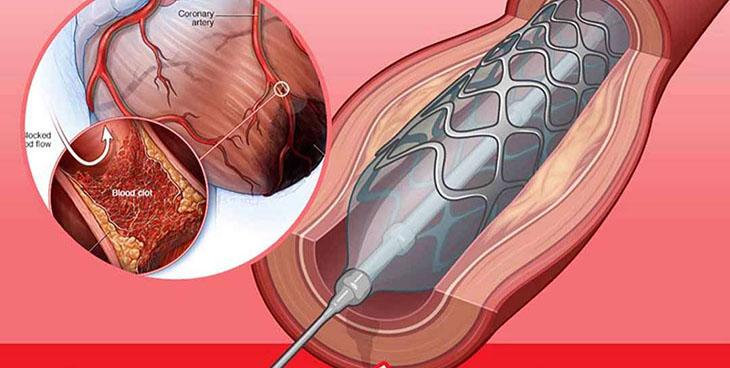 Xét nghiệm luồng trong trong tim rất hữu ích trong y học